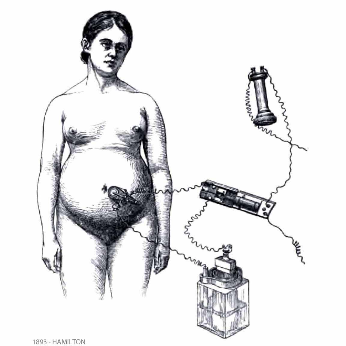 1893-HAMILTON-FHR auscultation with microphone